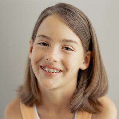 Image of a young girl in braces. Learn more about when to visit the orthodontist at Bradshaw Family Dental in Prescott Valley, AZ