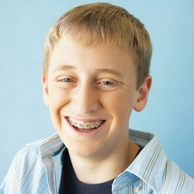 bradshaw family dentistry young man smiling with braces