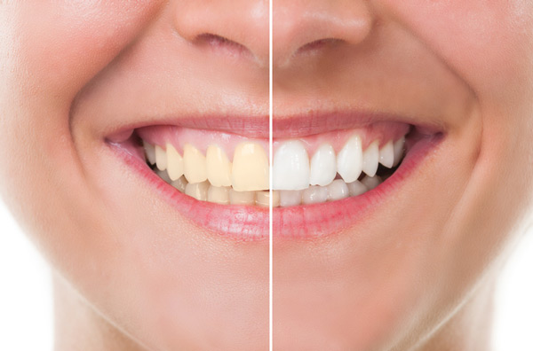 Before and after photo of teeth whitening treatment. Learn more about teeth whitening at Bradshaw Family Dental in Prescott Valley, AZ