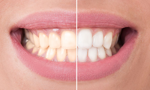 A before and after picture of a client's teeth being whitened.